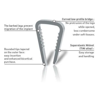 HOFER DISTAL FIBULA / ANKLE PLATES   Scientific Surgical